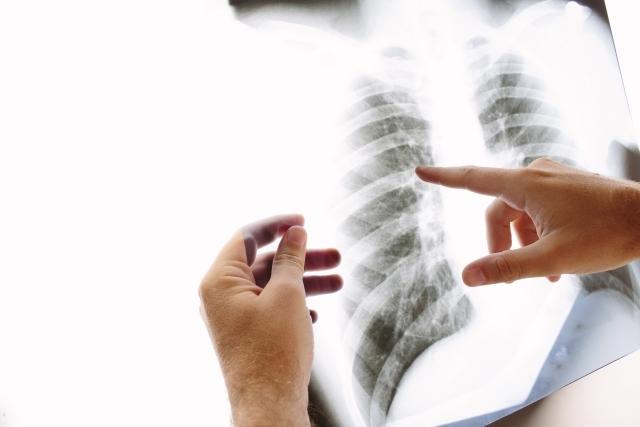 胸部レントゲン検査