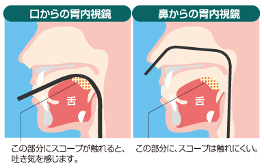 経鼻内視鏡について